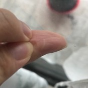 A small white line on a thumb.