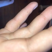 Swollen fingers from an insect bite.
