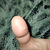 A painful white bump on a thumb.
